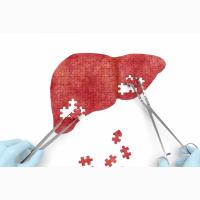 Курс лечения от вирусных гепатититов C и B амбулаторно (на дому)