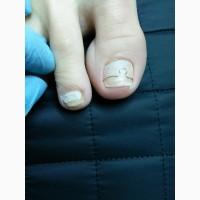 Подолог в Харькове. Лечение грибка ногтей Харьков