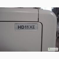 Продам узи аппарат экспертного класса Philips HD11XE, 2010 г
